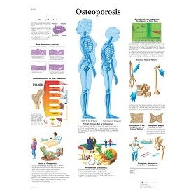 Osteoporosis poster VR1121UU