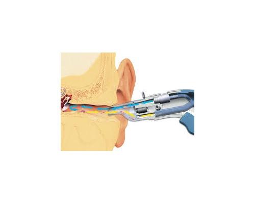Συσκευή πλύσης αυτιών welch allyn