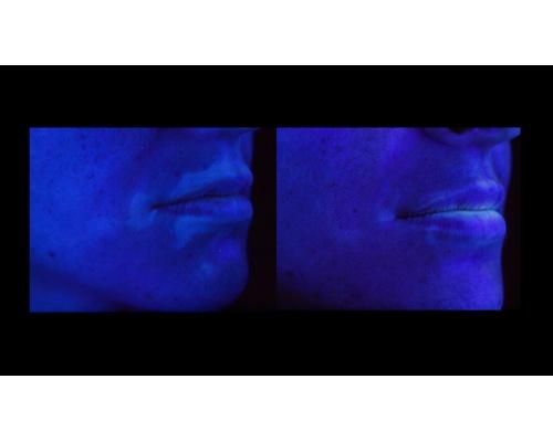 Φακός διάγνωσης δερματολογικών ασθενειών Wood Lamp