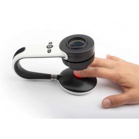 Συσκευή δερματοσκόπησης νυχιών και καπιλαροσκόπησης DermLite Nailio®