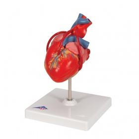 Πρόπλασμα καρδιάς Bypass G05