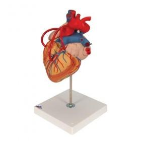 Πρόπλασμα καρδιάς Bypass G06