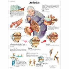 Αφίσα αρθρίτιδας