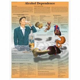 Αφίσα εξάρτησης από το αλκοόλ