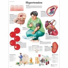 Αφίσα υπέρτασης