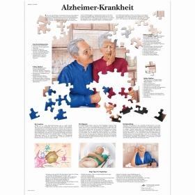 Αφίσα νόσου Alzheimer