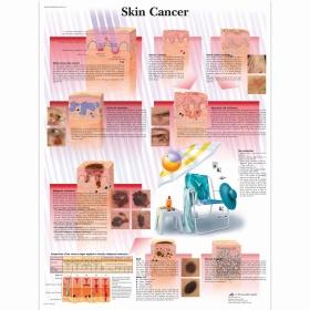 Αφίσα καρκίνου του δέρματος
